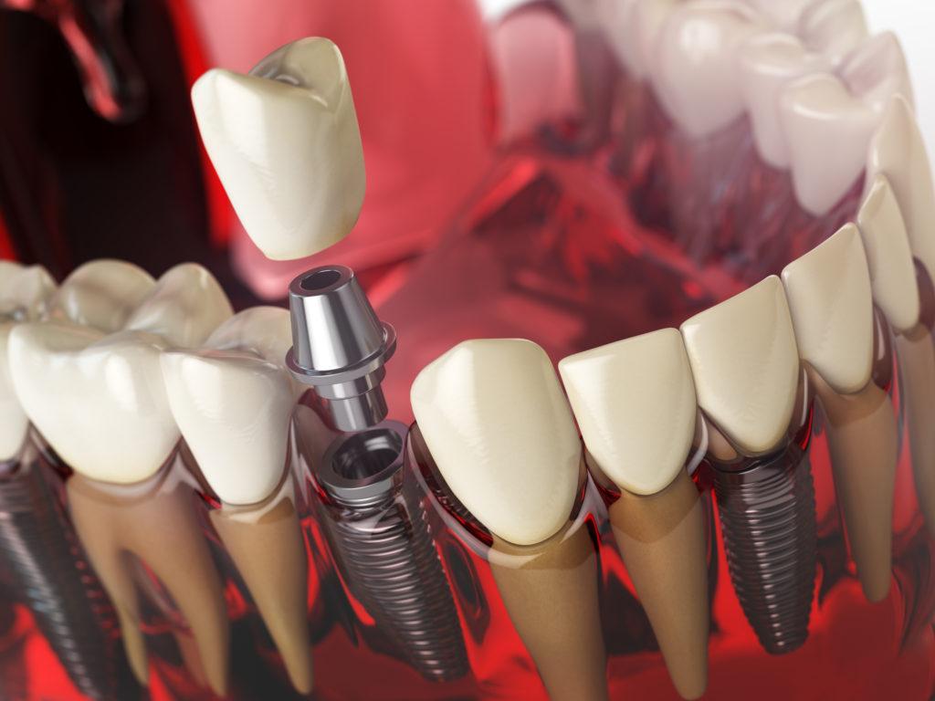 implantologia wrocław